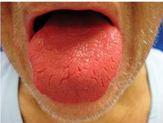Scalloped Tongue? Check your thyroid! B12 Deficiency Tongue